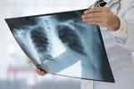 A cada 39 segundos pneumonia mata uma criança de até 5 anos